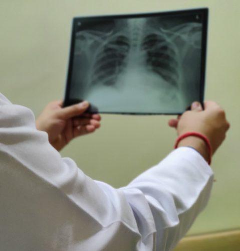Parul Hospital Pulmonary Specialist